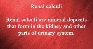Renal calculi