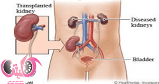 Kidney Transplant - Is Kidney Transplant Good For You