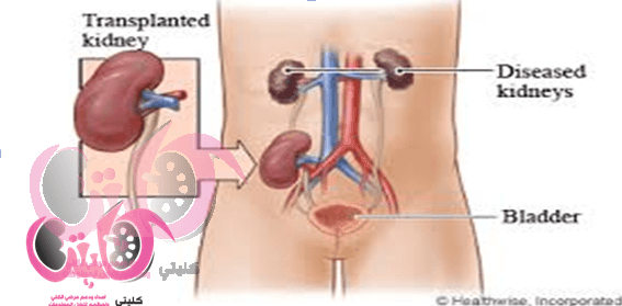 Kidney Transplant - Is Kidney Transplant Good For You