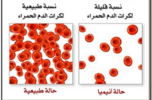 فقر الدم علاج