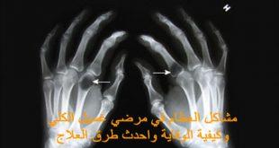 أمراض العظام مع مرضي غسيل الكلي