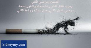 التدخين ومشاكلة في مرضي الكلي