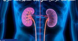 كتب امراض الكلي باللغة العربية