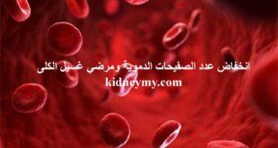 انخفاض الصفيحات الدموية واثارها علي مرضي غسيل الكلى