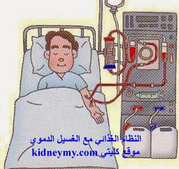 النظام الغذائي مع الغسيل الدموي افضل الطرق
