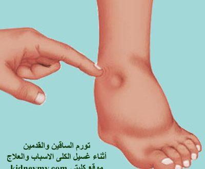ارفع نفسك باكستاني هذا كل شئ علاج انتفاخ القدم اليسرى Myfirstdirectorship Com