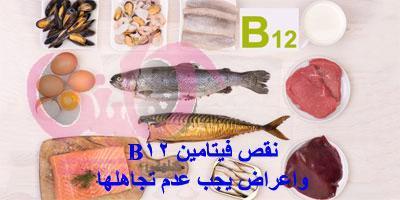 نقص فيتامين B12 اعراض