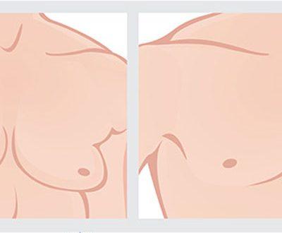 التثدي ومرضي غسيل الكلي الذكور