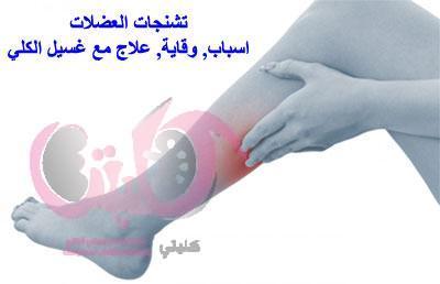 تشنجات العضلات تحدث في 33 إلى 86 من مرضى غسيل الكلى اسباب وقاية علاج