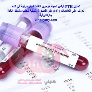 تحليل PTH في الدم