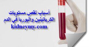 نقص الكرياتينين واليوريا في الدم الاسباب والأعراض المرتبطة