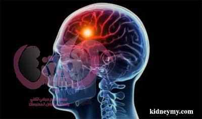 عادات يومية تدمر الدماغ وأخطر 10 عادات يومية