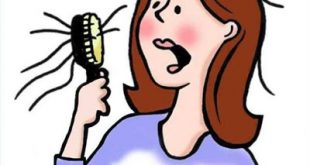 Female hair loss solutions