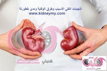 التهابات الكلى الأسباب وطرق الوقاية ومدي خطورتة
