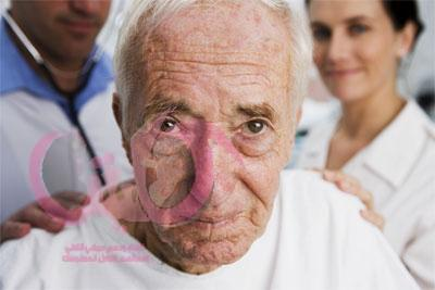 أكثر المرضى تعقيدا هم مرضى الكلى