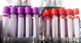 ما هو تحليل serum creatinine