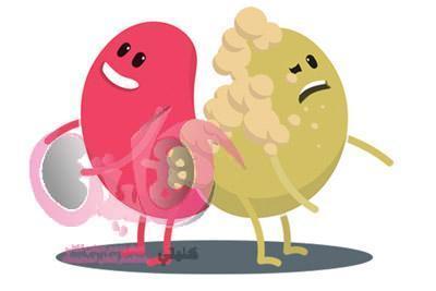 مراحل اعتلال الكلي السكري وطرق العلاج والوقاية الطبية الفعالة