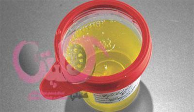 علاج زلال البول الكلوي