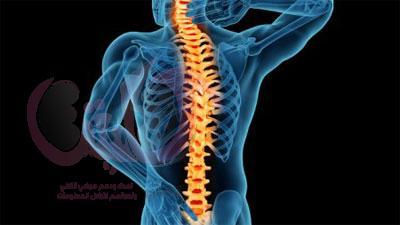 اضطرابات العمود الفقري من مظاهر الإعاقة الحركية