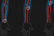 انواع الناسور الشرياني الوريدي AV الافضل لمرضى غسيل الكلى