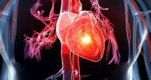 أعراض أمراض القلب عند النساء