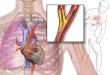 قصور القلب ومرضي غسيل الكلى الأعراض والتشخيص والوقاية