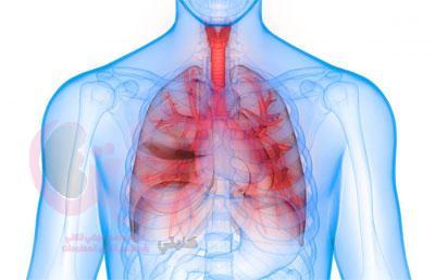 علاج متلازمة الرئة الكلوية