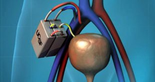 artificial kidney transplantation
