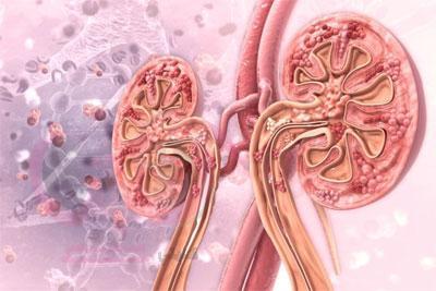 أمراض الكلى المرتبطة بالعمر