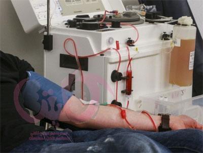 فصل البلازما وزرع الكلي غير المتوافق مع فصيلة الدم