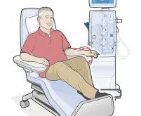 Dialysis Information you need to know