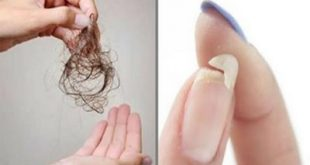 تساقط الشعر والأظافر بعد الفشل الكلوي