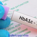 اختبار الهيموجلوبين الغليكوزيلاتي (A1C)