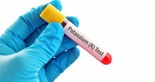 علاج ارتفاع البوتاسيوم في الدم