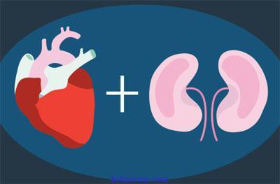 تأثير غسيل الكلى على القلب